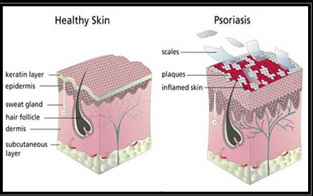 hair removal for psoriasis sufferers